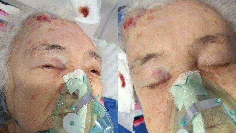 Família denuncia negligência após idosa com Covid-19 cair de leito em hospital de Manaus